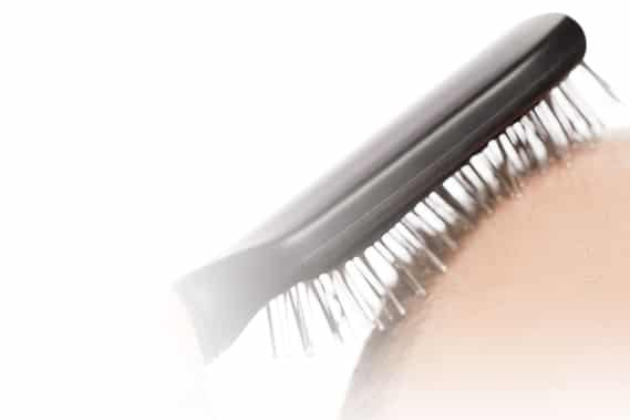 A brush on scalp affected by alopecia.